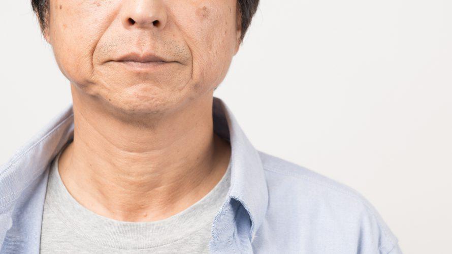 見た目が圧倒的に老化するストレス